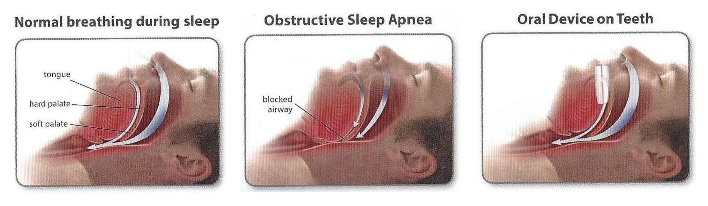 Sleep apnea process illustrator